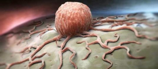 emergenza-tumori-nel-salento-tutti-i-rischi-foto-pazienti-it_1213641